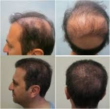 add to worry, which in turn escalates the hair-loss process — it is a vicious cycle!   http://topservice4u.in/hair-transplant-surgeons-pune/