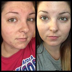 Image Skincare works wonders!