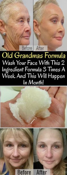 Old Grandmas Formula, Wash Your Face With This 2 Ingredient Formula 3 Times A Week And This Will Happen In Month!