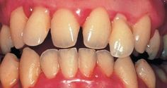 ces-4-plantes-soulagent-les-inflammations-et-les-problemes-dentaires