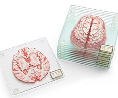 Look inside a human brain without the inconvenience of being crammed into an MRI chamber. This set of 10 glass coasters are each printed with a brain slice, which form a completed image when stacked in the proper sequence.