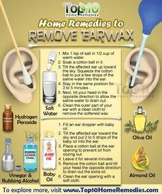 10 HOME Remedies to REMOVE EARWAX: 1) SALT Water 2) Hydrogen Peroxide 3) Baby Oil 4) VINEGAR + Rubbing Alcohol 5) WARM Water 6) OLIVE Oil 7) ALMOND Oil 8) Baking Soda 9) Glycerin 10) OMEGA-3 Fatty Acids <3 ;)*