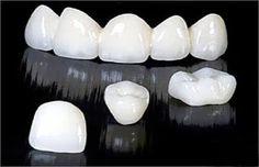 Mức chi phí điều trị tủy sẽ phụ thuộc vào tình trạng răng miệng thực tế của bạn, với những răng có ống tủy phức tạp như răng hàm thì chi phí điều trị cũng cao hơn. Sau khi thăm khám cụ thể, nha sỹ sẽ đưa ra cho bạn một mức giá lấy tủy chính xác nhất cho bạn.