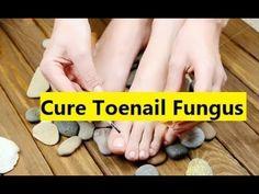 Cure Toenail Fungus - Nail Fungus Treatments