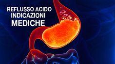 Alimentazione, diagnosi e trattamento del reflusso gastro-esofageo e reflussofaringo-laringeo.Il reflusso acido è un disturbo che può colpire chiunque, a prescindere dall'etnia, dal sesso o dall'età. Ilriflusso gastricosi verifica quando l'acido contenuto nello stomaco scorrecontrocorrentefino a raggiungere l'esofago. L'esofago è la struttura che collega la gola allo stomaco: èper questo che si parla direflusso gastroesofageo. Sono …