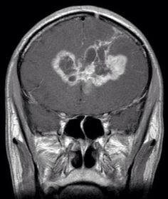 What name is given to this brain tumor appearance? ANSWER:...