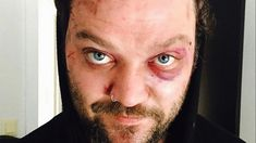 The Real Reason We Don't Hear From Bam Margera Anymore - YouTube