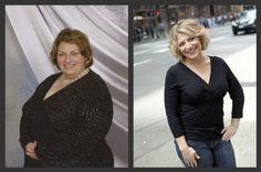theworldaccordingtoeggface: My Before & After - Weight Loss Surgery