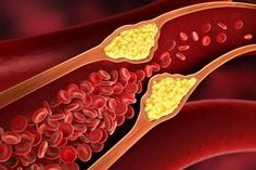 Narrowing of a blood vessel - illustration. Red blood cells passing through a , Vida Natural, Red Blood Cells, Blood Vessels, Health Facts, Spoon, Herbalism, Health Fitness, Healthy, Leiden