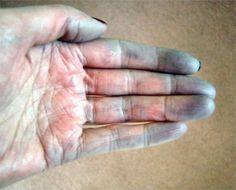 What Is Raynaud's Disease? - Health - NAILS Magazine