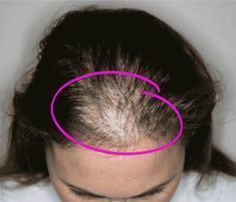 15 Causes of Women's Hair loss and How To Treat it http://tophairgrowthtip.com/how-to-grow-natural-hair-fast-and-healthy/home-remedies-for-hair-growth-and-thickness/