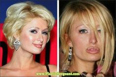 paris - before and after plastic surgery