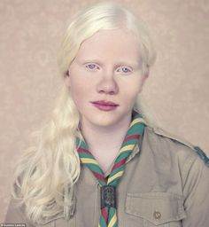 A young girl poses in her Girl Scout uniform from Brazil in an article on Albinism and the racism they face.