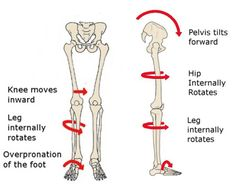 4 causes of knee pain that have nothing to do with the knee   jessephysio