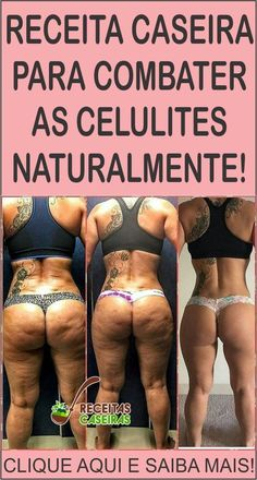 Como Eliminar as Celulites em Apenas 4 Dias! Weight Loss For Women, Fast Weight Loss, Weight Loss Program, Weight Loss Journey, How To Lose Weight Fast, Losing Weight, Fitness Motivation Pictures, Weight Loss Motivation, Fitness Tracker