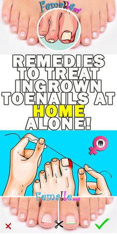 Here they are, 5 remedies to treat ingrown toenails at home alone! Remove Ingrown Toe Nail, Ingrown Toenail Remedies, Toenail Pain, Toe Nail Soak, Nail Infection, Natural Home Remedies, Feet Care, Party Makeup, Health Tips