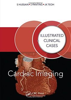 Cardiac Imaging: Illustrated Clinical Cases by Shahid Hus... https://www.amazon.co.uk/dp/1482235730/ref=cm_sw_r_pi_dp_XrKgxbM824PAM