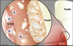 periodontal health bacteria - Google Search