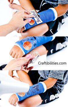Cool arm CAST TATTOO - Broken bones are no fun but CASTTOO makes it a little better - decorate