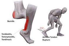 Image result for achilles tendon Achilles Tendon, Image