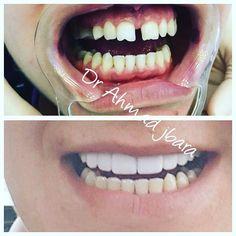 #طب_الأسنان #طبالأسنان #bucharest #romania #oromaxilofacial #smile #smiles #hollywoodsmile #art #famous #dental #dentist #dentistry #dentalcare #dentalschool #ocluzologie #odontologie #oralsurgeon #oralsurgery #stomatologie #cosmeticdentistry 0040721513515 by dr_ahmad_jbara Our Oral Surgery Page: http://www.myimagedental.com/services/oral-surgery/ Google My Business: https://plus.google.com/ImageDentalStockton/about Our Yelp Page: http://www.yelp.com/biz/image-dental-stockton-3 Our Facebook…