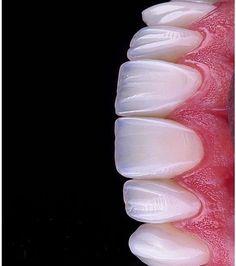 Top Oral Health Advice To Keep Your Teeth Healthy – Best Teeth Whitening Techinque Dental Art, Dental Teeth, Dental Implants, Veneers Teeth, Dental Veneers, Dental Wallpaper, Dental Images, Dental Photography, Dental Aesthetics
