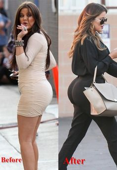 Khole Kardashian Butt Implants Surgery Before and After, Botox