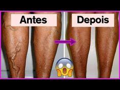 Aplique Esta Mistura nas Pernas e Elimine Dor e Varizes Sem Nenhum Sofrimento! Dicas de Saúde - YouTube