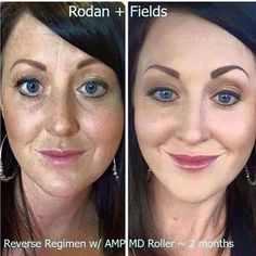 WOW! Thank you Chelsea Jones for sharing your results! Two months of Rodan + Fields Reverse regimen and Amp Roller and look how beautiful her skin looks! (She has makeup on in both pics.). Reverse was RF's top seller when we were in Nordstrom years ago, and you can see why!    Message me to find out how to own your own Rodan + Fields franchise or just to simply get info on our wonderful, clinically proven products!