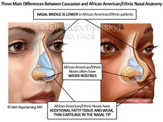 This image is just to medically show the 3 basic differences between the Caucasian's and African American's nose. This relates to the glorification of the Eurocentric looks, leading black women to desire narrower noses.