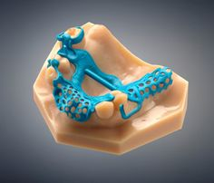 Stratasys' Director of Global Dental, Avi Cohen, sat down with the Stratasys Blog to discuss the addition of two new Wax Deposition Modeling (WDM) 3D Printers to the company's Dental 3D Printer family, enabling dental labs to increase the production of  restoration wax-ups with easy-to-use workflow and low cost-per-wax-up.