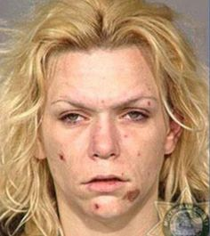 You Will Never Want To Do Drugs After Seeing These Faces Of Meth