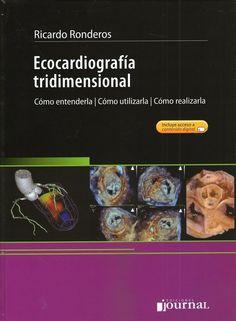 Ecocardiografía Tridimensional - Libreria AZ-Médica
