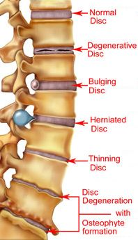 Remedies To Relief Pain herniated disk supplements to help speed recovery and repair-glucosamine with chondroiton, flax seed oil, calcium and phosphorus with vit. D, bee pollen Muscle Anatomy, Body Anatomy, Leg Muscles Anatomy, Fitness Workouts, Degenerative Disc Disease, Spine Health, Medical Anatomy, Human Anatomy And Physiology, Sciatica