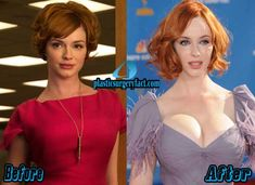 Christina Hendricks Breast Implants Before And After | http://plasticsurgeryfact.com/christina-hendricks-plastic-surgery-before-and-after-photos/