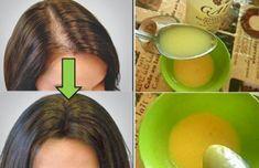 Revitaliza tu cuero cabelludo y olvídate de la calvicie con este remedio