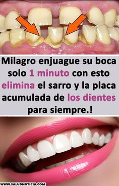 Milagro enjuague su boca solo 1 minuto con esto elimina el sarro y la placa acum… Miracle rinse your mouth for only 1 minute with this eliminates tartar and accumulated plaque of teeth forever. Natural Teething Remedies, Natural Remedies, Herbal Remedies, Home Remedies, How To Lose Weight Fast, Body Care, Health And Beauty, Herbalism, Beauty Hacks