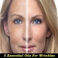 5 Essential Oils for Wrinkles