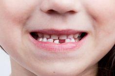 What Happens when you have missing teeth.  #FrandsendDental