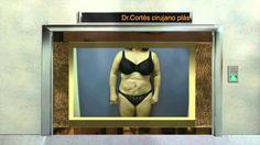 Este video el Dr. Cortes, explica cual es el candidato ideal para un tummy tuck. El Dr. Cortes es un cirujano plastico certificado que se especializa en cirugía cosmetica.  Para mas información visita nuestra pagina web http://www.miscurvaslatinas.com o http://hourglasstummytuck.com