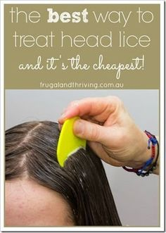 A Natural Lice Treatment That is Effective and Frugal You don't need to spend hundreds of dollars on chemical treatments to get rid of head lice. In fact, lice have built up resistance to the treatments, so instead, use this frugal and e Natural Lice Treatment, Lice Treatmemt, Hair Lice, Home Remedies For Hair, Natural Home Remedies, Getting Rid Of Nits, How To Treat Lice, Lice Shampoo, Natural Remedies