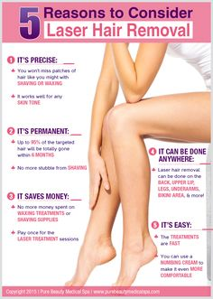 5 Reasons to Consider Laser Hair Removal