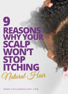 (Last Updated On: May scalp can be embarrassing, painful and just plain disgusting! Sometimes I wish it was possible to scrape my scalp off my head and just . # diy scalp Braids Nine Reasons Why You Have An Itchy Scalp # scalp Braids tips Itchy Dry Scalp Remedy, Itchy Scalp Causes, Itchy Flaky Scalp, Dandruff Remedy, Hair Remedies, What Causes Itchy Scalp, Dry Itchy Scalp Treatment, How To Grow Natural Hair, Natural Hair