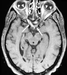 CNS MR and CT Findings Associated with a Clinical Presentation of Herpetic Acute Retinal Necrosis and Herpetic Retrobulbar Optic Neuritis: Five HIV-Infected and One Non-Infected Patients Optic Neuritis, Pet Ct, Board Exam, Central Nervous System, Multiple Sclerosis, Clinic, Ms, Google Search, Medicine