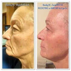 Probably one of the most dramatic before and afters I have seen in a while.  This lady is the mother-in-law of one of our Consultants.  3 months of REDEFINE, AMP MD Roller and the Eye Cream.  Amazing!  Message me for details.  https://connietompkins.myrandf.com/Shop/Product/AAPRS01