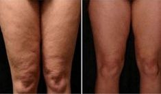 Cellulite is a condition where your skin appears dimpled. Not that it's a problem, but for those of you who want to know how to reduce cellulite, I have some . Lose Cellulite, Cellulite Scrub, Cellulite Cream, Cellulite Remedies, Anti Cellulite, Uses For Coffee Grounds, Blackhead Remover, Healthy Tips, Tone It Up