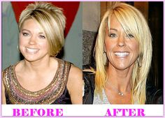 Kate Gosselin Plastic Surgery Before And After #KateGosselinPlasticSurgery #KateGosselin #celebritiesplasticsurgery