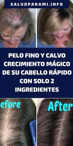 Cabello Hair Hair Growth Beauty Nails Beauty Makeup Hair Beauty Beauty Care Hair And Nails Health And Beauty Bella Beauty Beauty Care, Beauty Hacks, Hair Beauty, Cabello Hair, Christmas Gifts For Girlfriend, Hair Loss Treatment, Grow Hair, Kraut, Hair Growth