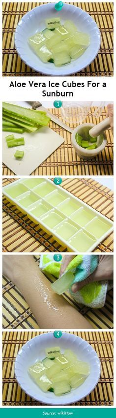 These are brilliant! (esp for the husband who burns.every.time.)   DIY Aloe Vera cubes for sunburn