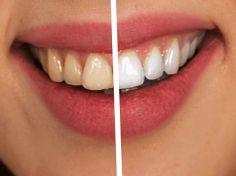 Efektivní přírodní řešení, které vám pomůže zbavit se zubního kamene a povlaku bez drahých procedur